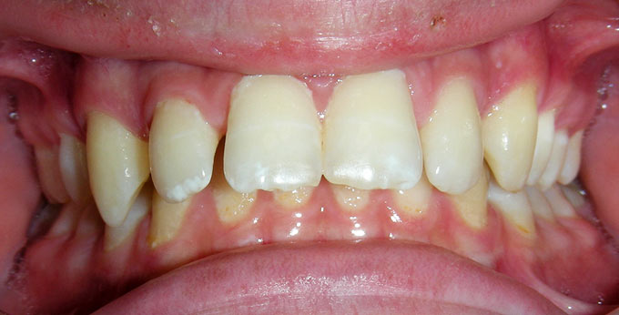 Before treatment for severely splayed and spaced upper teeth with traumatic bite
